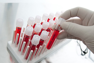 DUI Blood Test Errors
